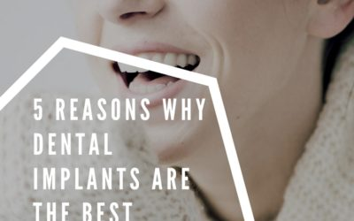 Five Reasons Why Dental Implants Are the Best Solution